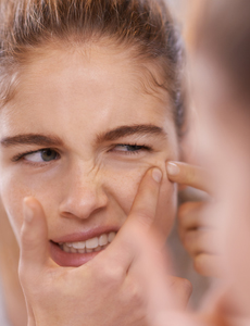 The Dos and Don'ts of Zit Care